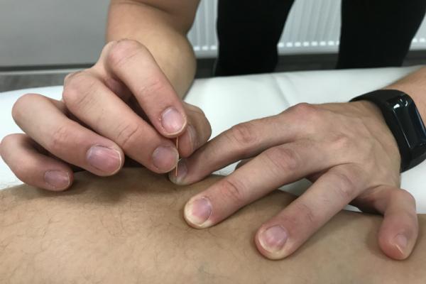 Aplikace suché jehly v fyzioterapeutickém centru Kinisi