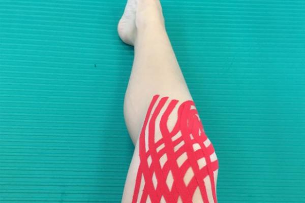 Fyzioterapie KINISI Praha 9 - Kineziotejping tejpování kolene