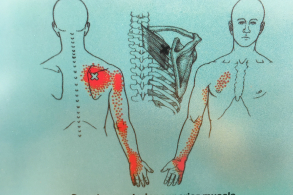 Fyzioterapie KINISI Praha 9 - Léčba  boletsti a trvalé odstranění potíží pomocí metod a přístupů léčby spoušťových bodů (trigger pointů)